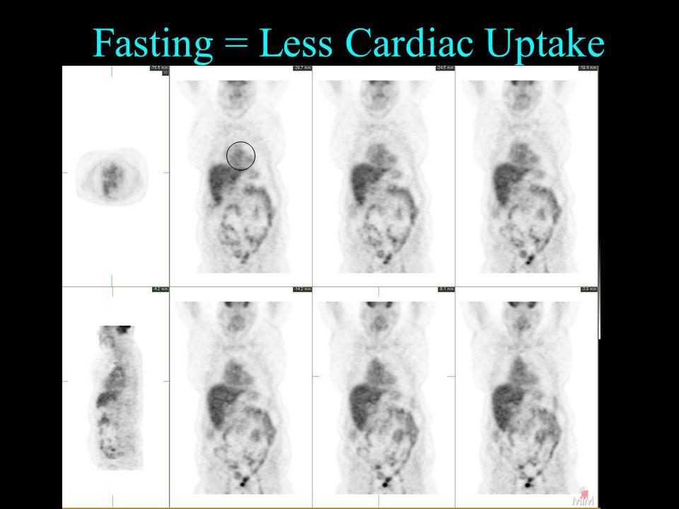 Fasting = Less Cardiac Uptake