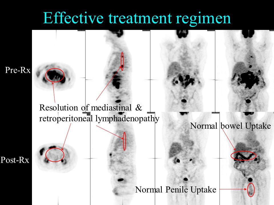 Effective treatment regimen Pre-Rx Post-Rx Resolution of mediastinal & retroperitoneal lymphadenopathy Normal Penile Uptake Normal bowel Uptake