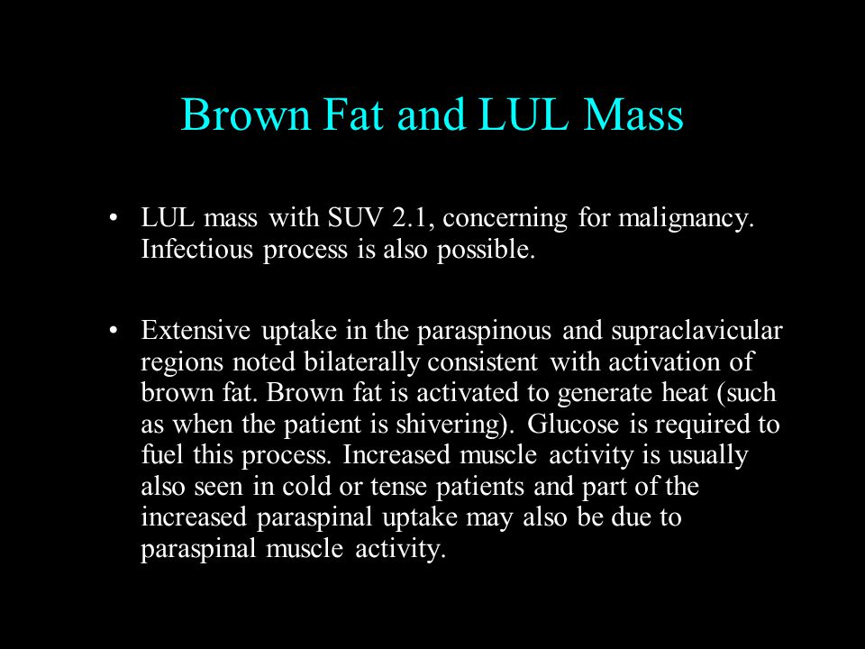 Brown Fat and LUL Mass LUL mass with SUV 2.1, concerning for malignancy.