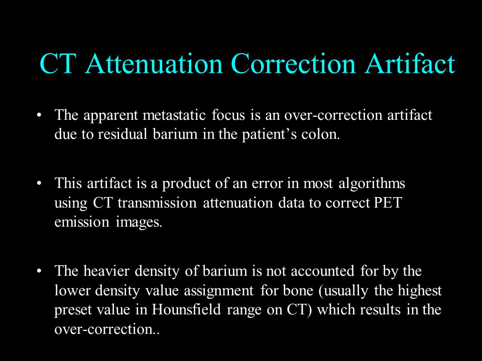CT Attenuation Correction Artifact The apparent metastatic focus is an over-correction artifact due to residual barium in the patient's colon.