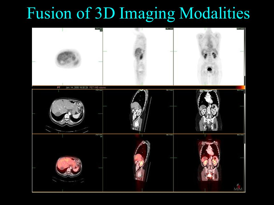 Fusion of 3D Imaging Modalities