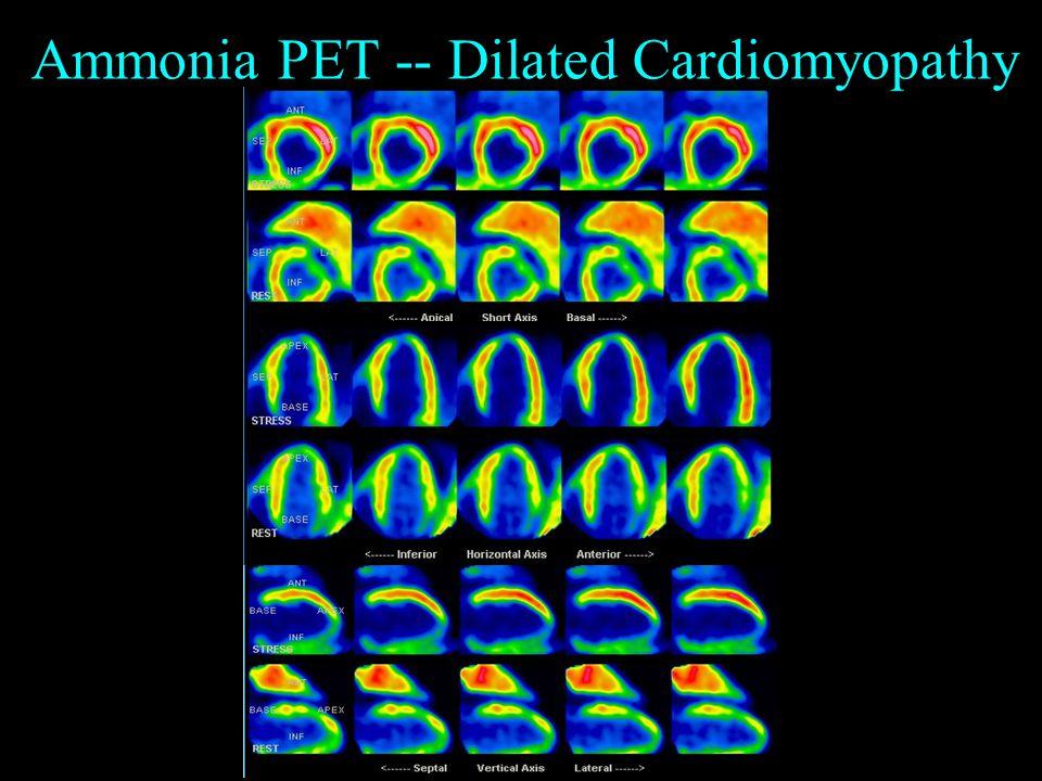 Ammonia PET -- Dilated Cardiomyopathy