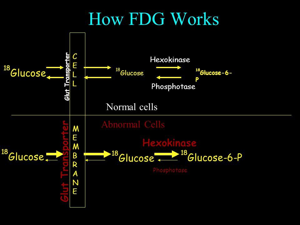 How FDG Works CELLMEMBRANECELLMEMBRANE Glut Transporter Hexokinase Phosphotase 18 Glucose Hexokinase Phosphotase 18 Glucose 18 Glucose-6-P Glut Transporter Normal cells Abnormal Cells 18 Glucose 18 Glucose-6- P 18 Glucose