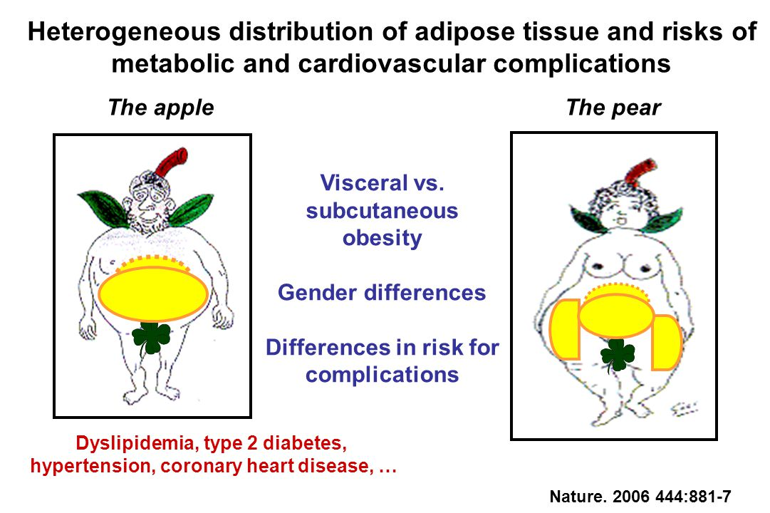 Heterogeneous distribution of adipose tissue and risks of metabolic and cardiovascular complications Visceral vs. subcutaneous obesity Gender differen