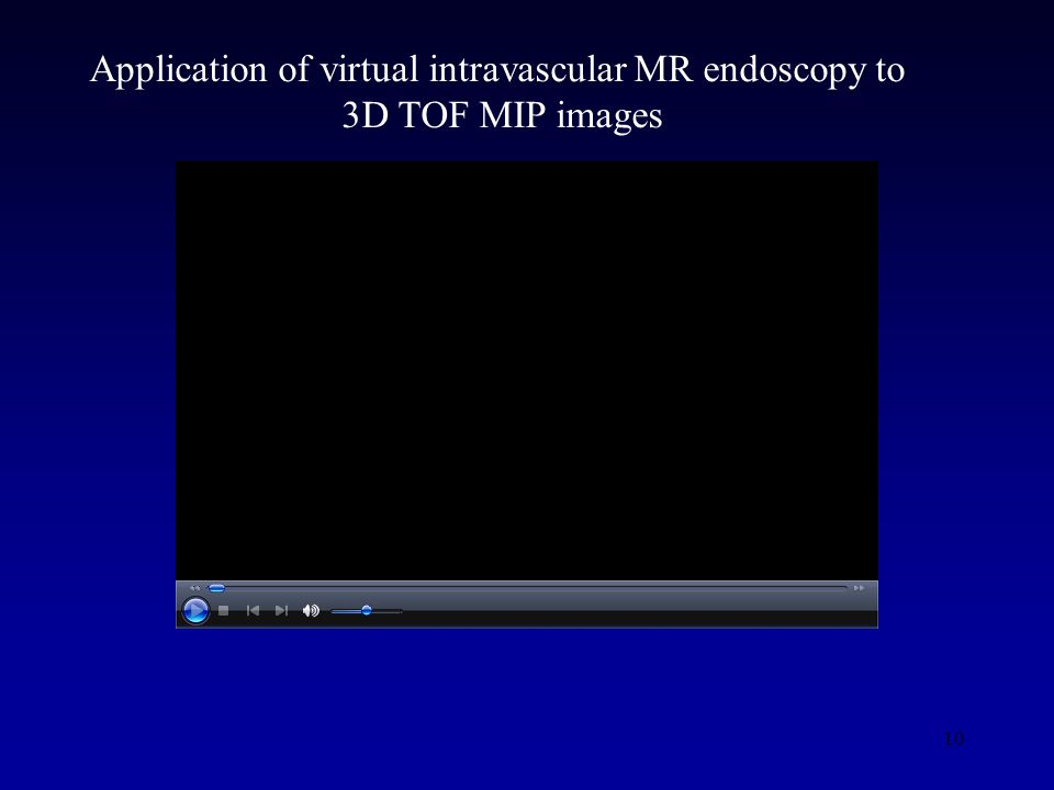 10 Application of virtual intravascular MR endoscopy to 3D TOF MIP images