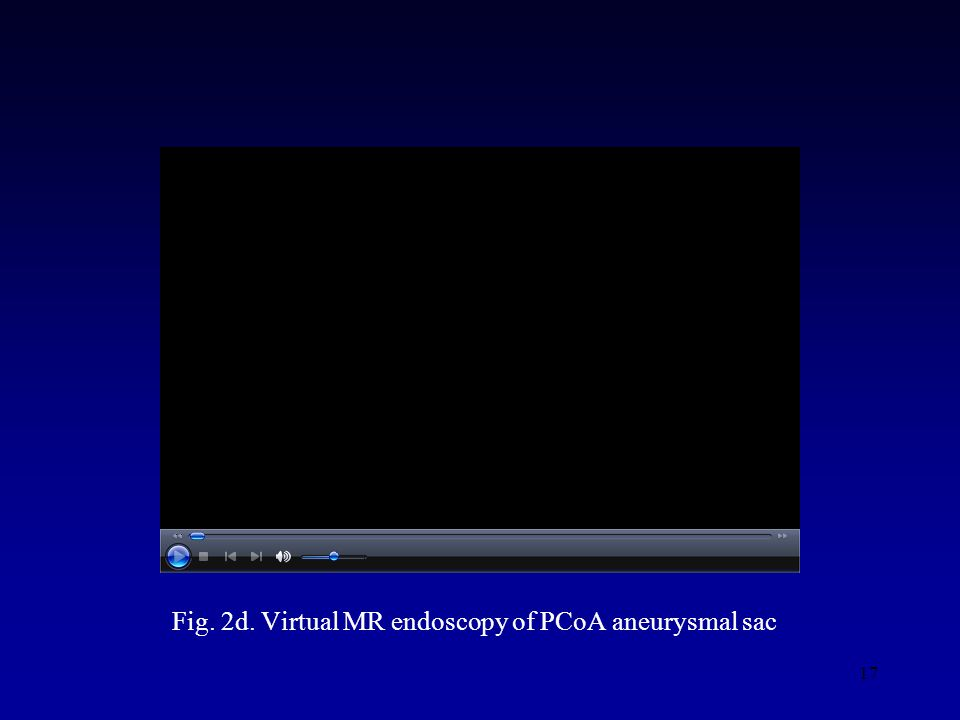 17 Fig. 2d. Virtual MR endoscopy of PCoA aneurysmal sac