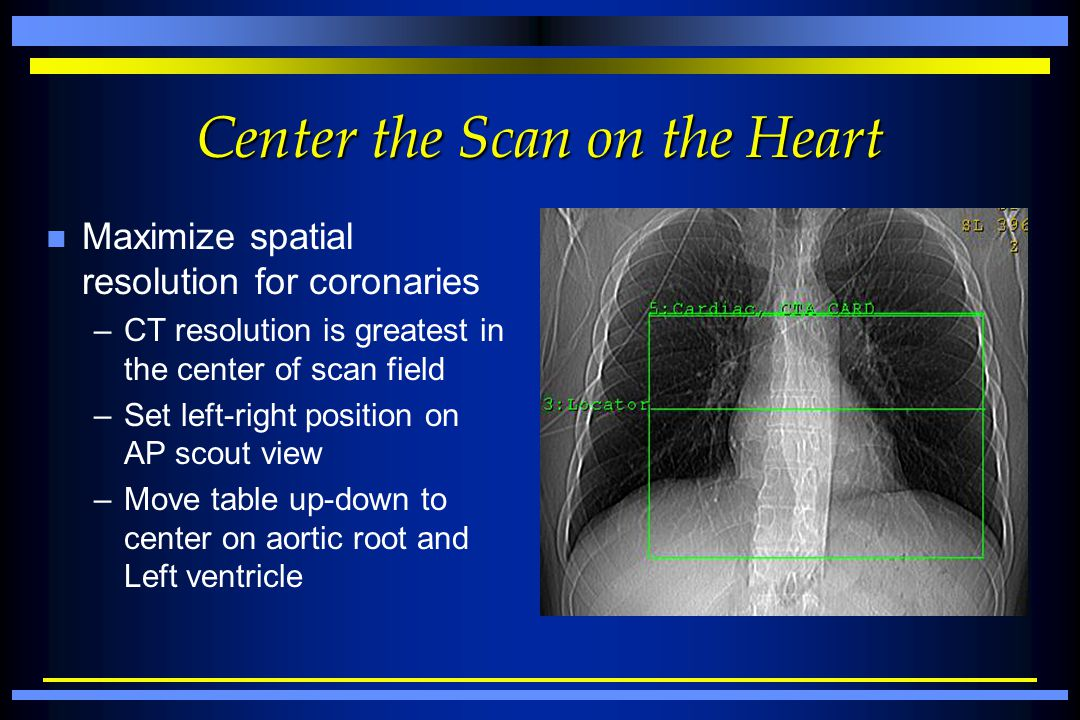 Center the Scan on the Heart n Maximize spatial resolution for coronaries –CT resolution is greatest in the center of scan field –Set left-right posit
