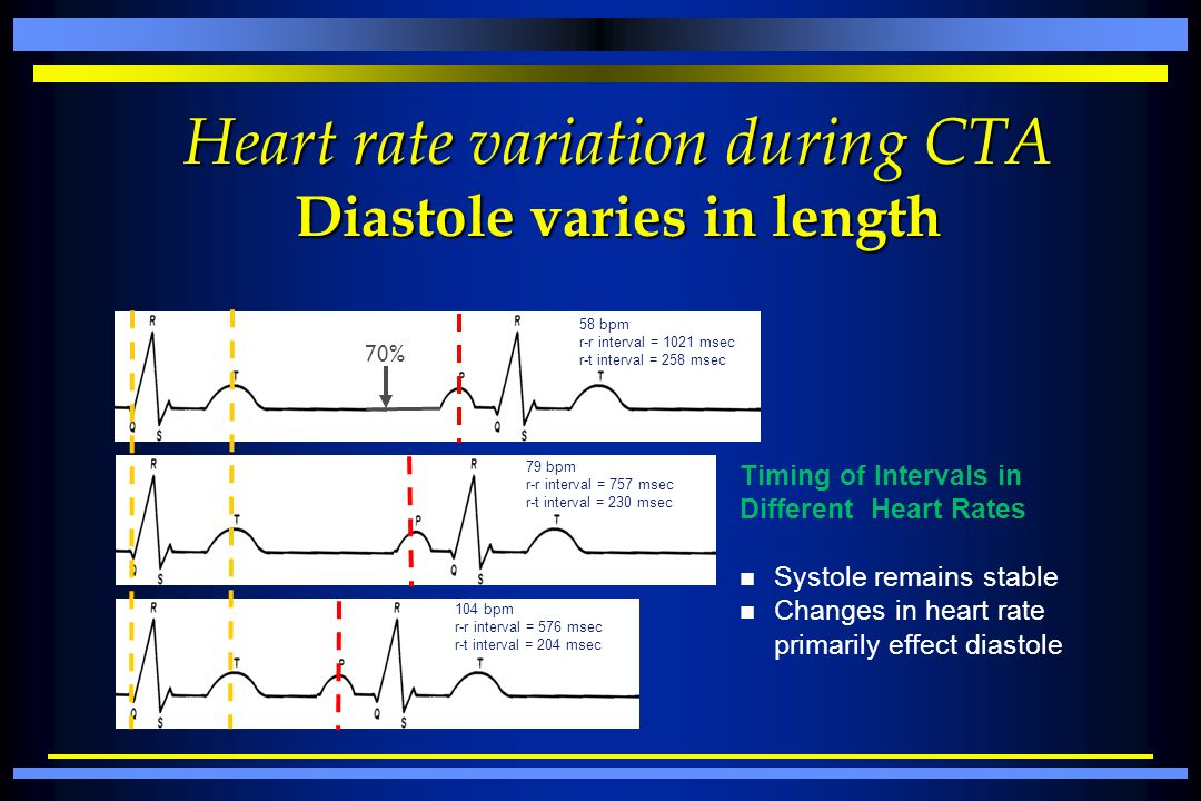 Heart rate variation during CTA Diastole varies in length 70% Timing of Intervals in Different Heart Rates n Systole remains stable n Changes in heart
