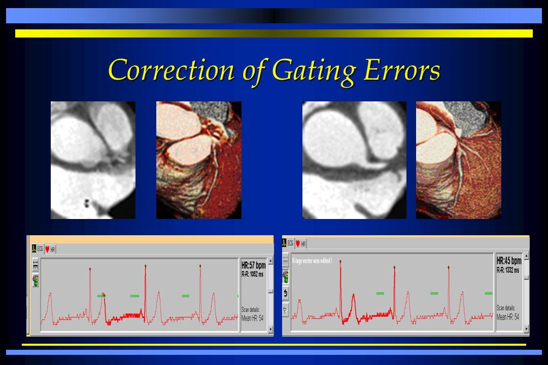 Correction of Gating Errors