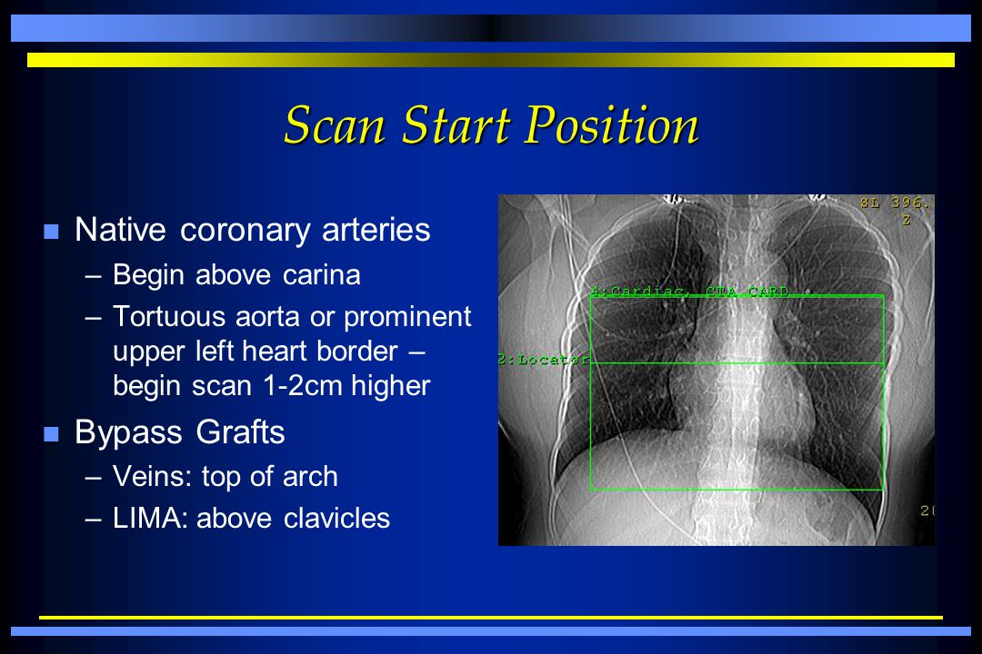 Scan Start Position n Native coronary arteries –Begin above carina –Tortuous aorta or prominent upper left heart border – begin scan 1-2cm higher n By