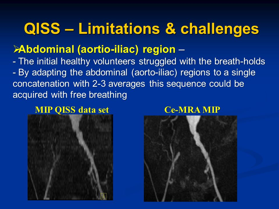  Abdominal (aortio-iliac) region – - The initial healthy volunteers struggled with the breath-holds - By adapting the abdominal (aorto-iliac) regions to a single concatenation with 2-3 averages this sequence could be acquired with free breathing QISS – Limitations & challenges MIP QISS data set MIP QISS data set Ce-MRA MIP