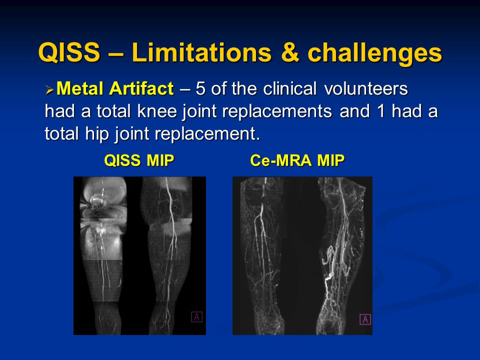 QISS MIP Ce-MRA MIP  Metal Artifact – 5 of the clinical volunteers had a total knee joint replacements and 1 had a total hip joint replacement.