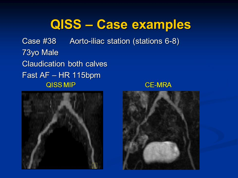 Case #38 Aorto-iliac station (stations 6-8) 73yo Male Claudication both calves Fast AF – HR 115bpm QISS MIP CE-MRA QISS MIP CE-MRA QISS – Case example