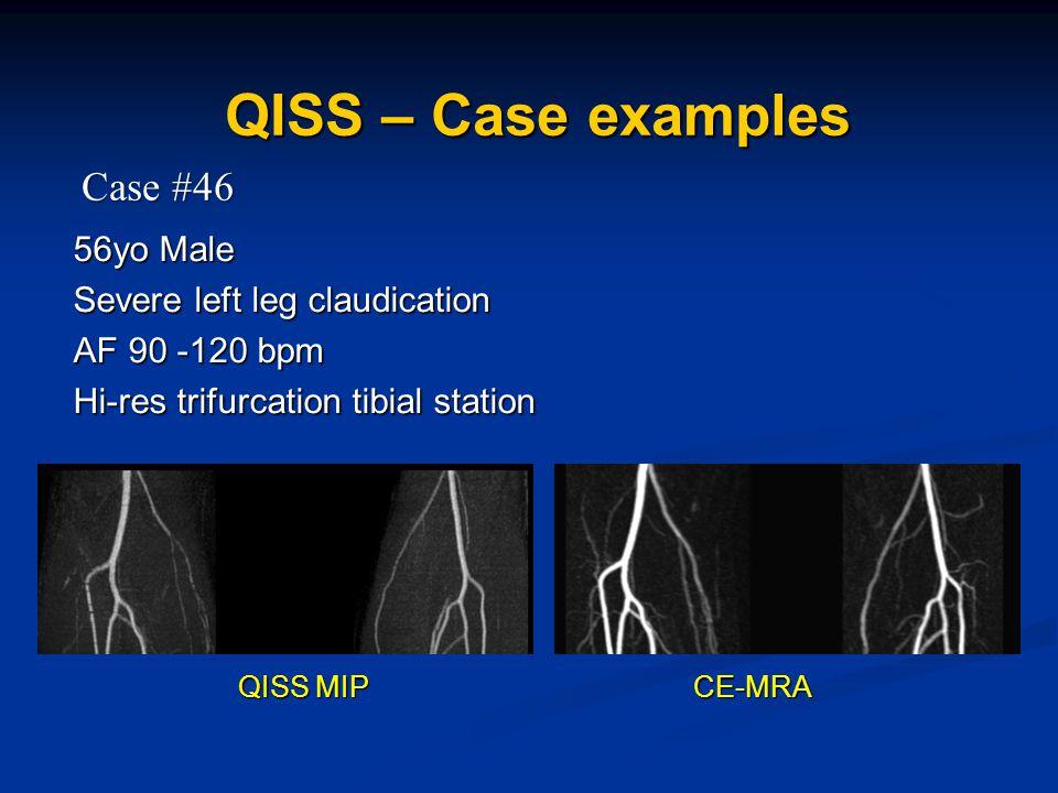 56yo Male Severe left leg claudication AF 90 -120 bpm Hi-res trifurcation tibial station QISS – Case examples Case #46 QISS MIP CE-MRA QISS MIP CE-MRA