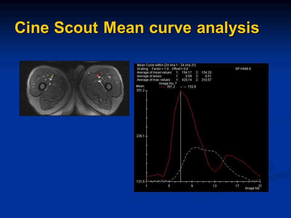 Cine Scout Mean curve analysis