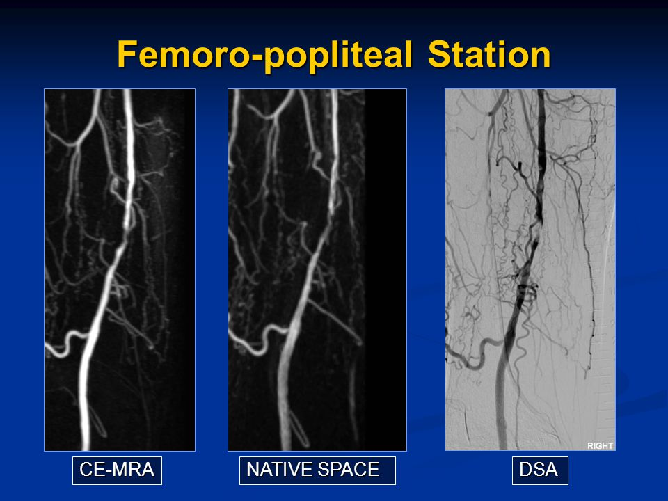 Femoro-popliteal Station CE-MRA NATIVE SPACE DSA
