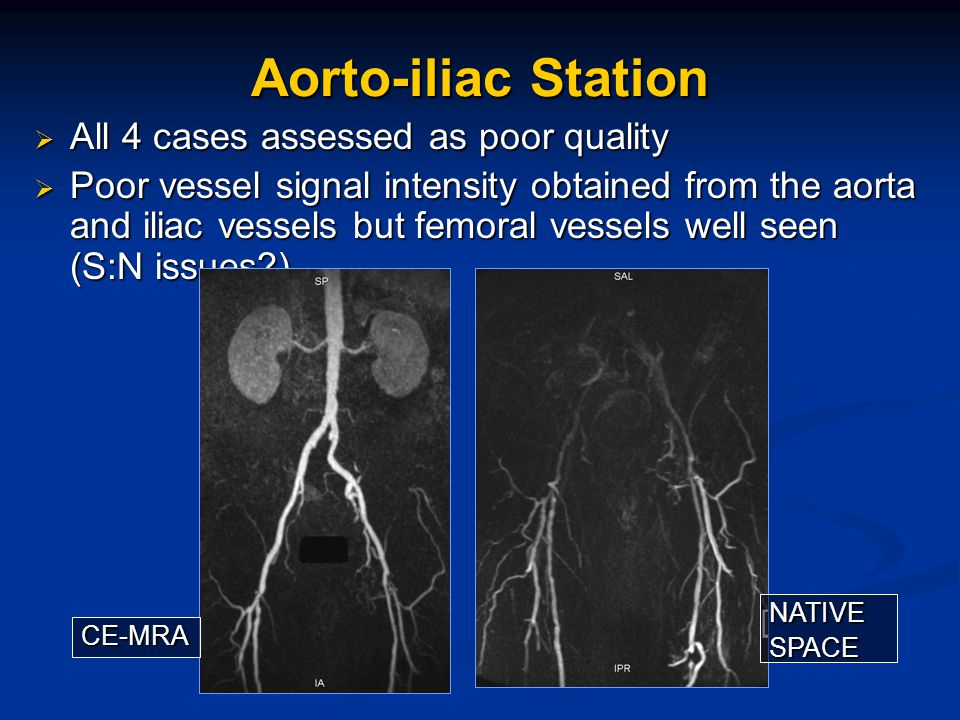 Aorto-iliac Station  All 4 cases assessed as poor quality  Poor vessel signal intensity obtained from the aorta and iliac vessels but femoral vessels well seen (S:N issues?) CE-MRA NATIVESPACE