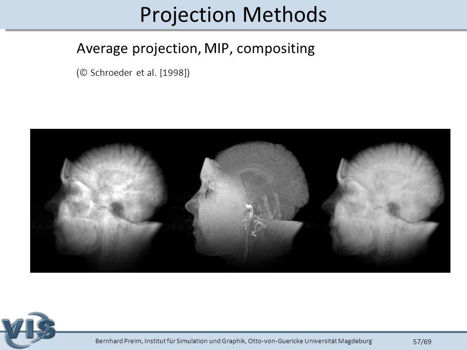 Bernhard Preim, Institut für Simulation und Graphik, Otto-von-Guericke Universität Magdeburg 57/69 Projection Methods Average projection, MIP, compositing (© Schroeder et al.