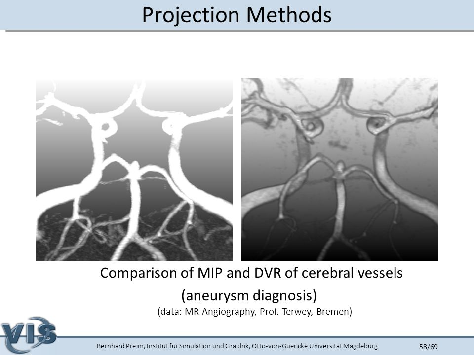 Bernhard Preim, Institut für Simulation und Graphik, Otto-von-Guericke Universität Magdeburg 58/69 Projection Methods Comparison of MIP and DVR of cerebral vessels (aneurysm diagnosis) (data: MR Angiography, Prof.
