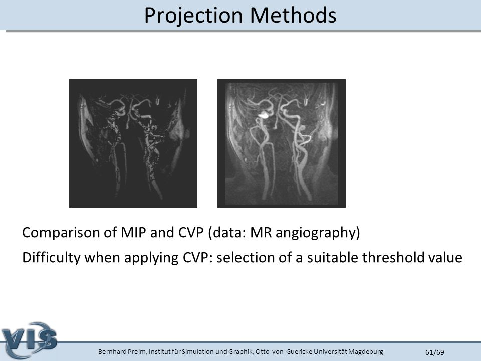 Bernhard Preim, Institut für Simulation und Graphik, Otto-von-Guericke Universität Magdeburg 61/69 Projection Methods Comparison of MIP and CVP (data: MR angiography) Difficulty when applying CVP: selection of a suitable threshold value