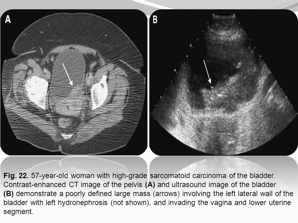 Fig. 22. 57-year-old woman with high-grade sarcomatoid carcinoma of the bladder. Contrast-enhanced CT image of the pelvis (A) and ultrasound image of