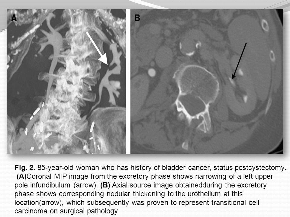 Fig.13. 67-year-old man who has metastatic bladder cancer.