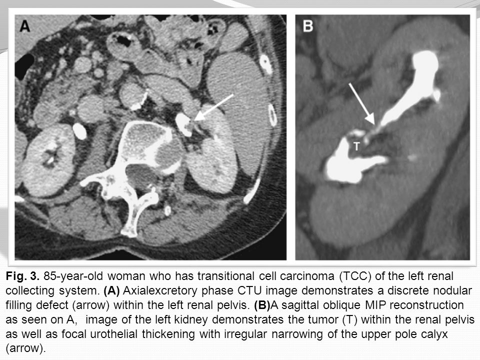 Fig. 3. 85-year-old woman who has transitional cell carcinoma (TCC) of the left renal collecting system. (A) Axialexcretory phase CTU image demonstrat