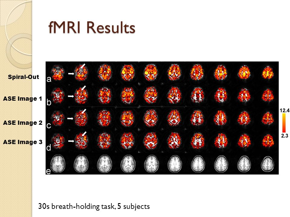 fMRI Results Spiral-Out ASE Image 1 ASE Image 2 ASE Image 3 30s breath-holding task, 5 subjects