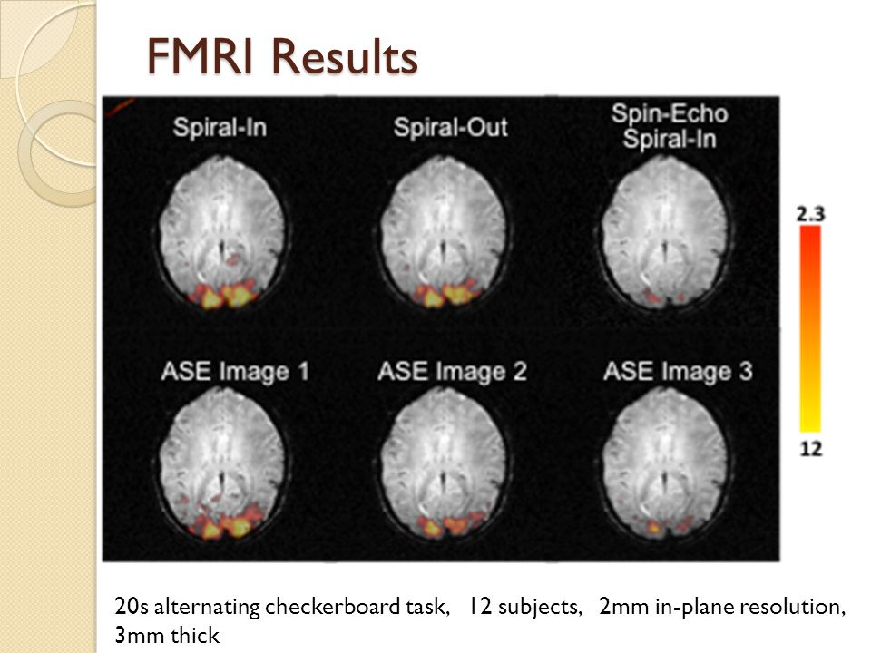 FMRI Results 20s alternating checkerboard task, 12 subjects, 2mm in-plane resolution, 3mm thick