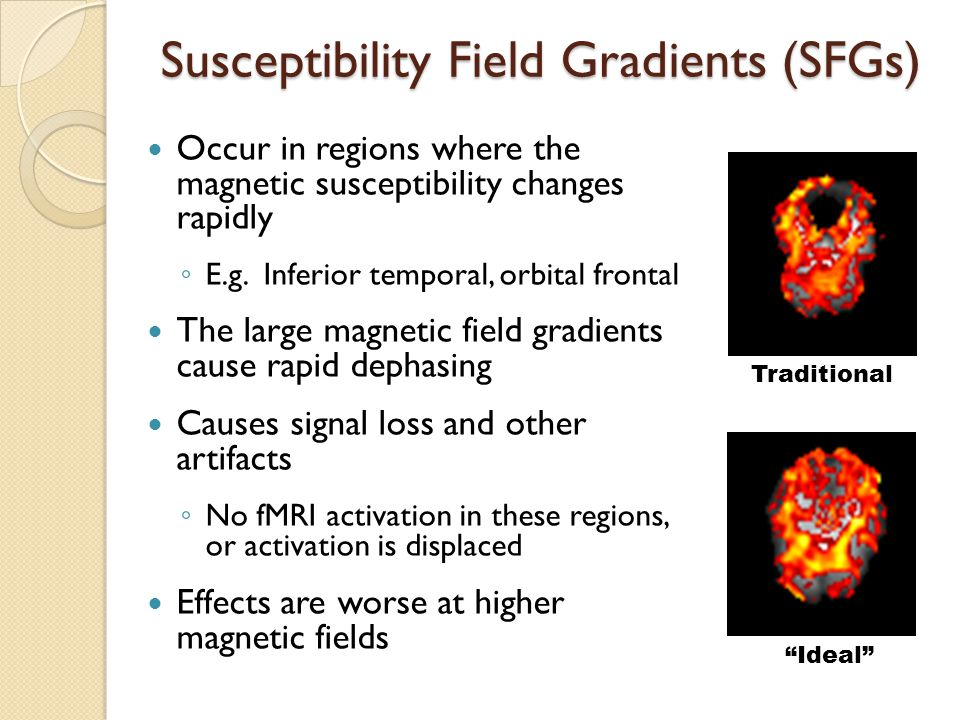 Susceptibility Field Gradients (SFGs) Occur in regions where the magnetic susceptibility changes rapidly ◦ E.g.