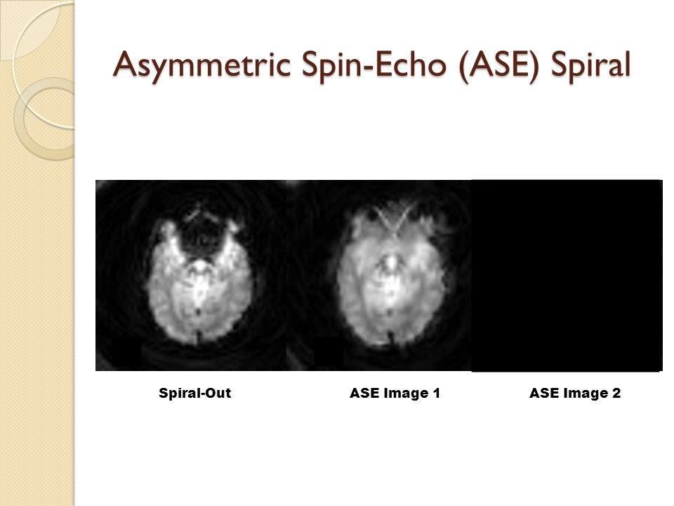 Spiral-Out ASE Image 1ASE Image 2