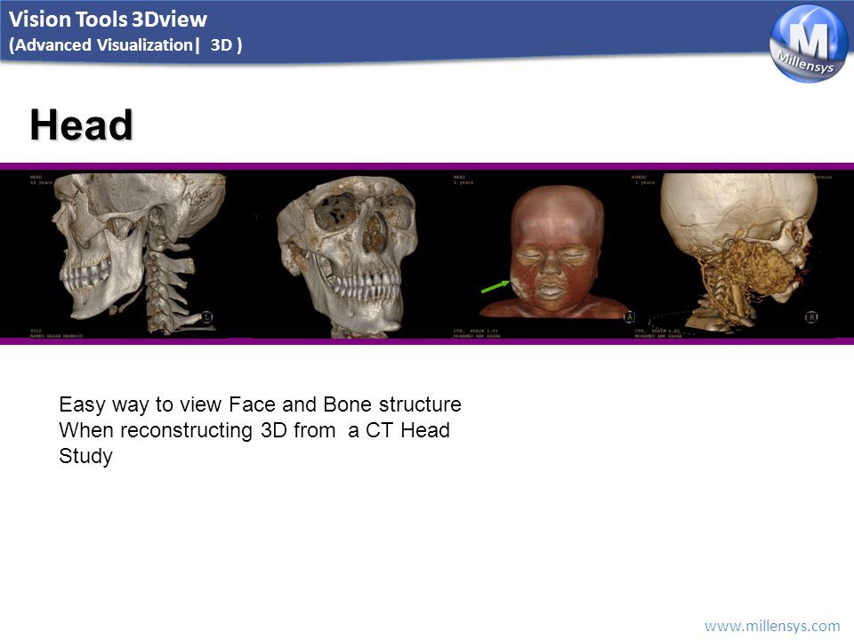 www.millensys.com Head Easy way to view Face and Bone structure When reconstructing 3D from a CT Head Study Vision Tools 3Dview (Advanced Visualizatio