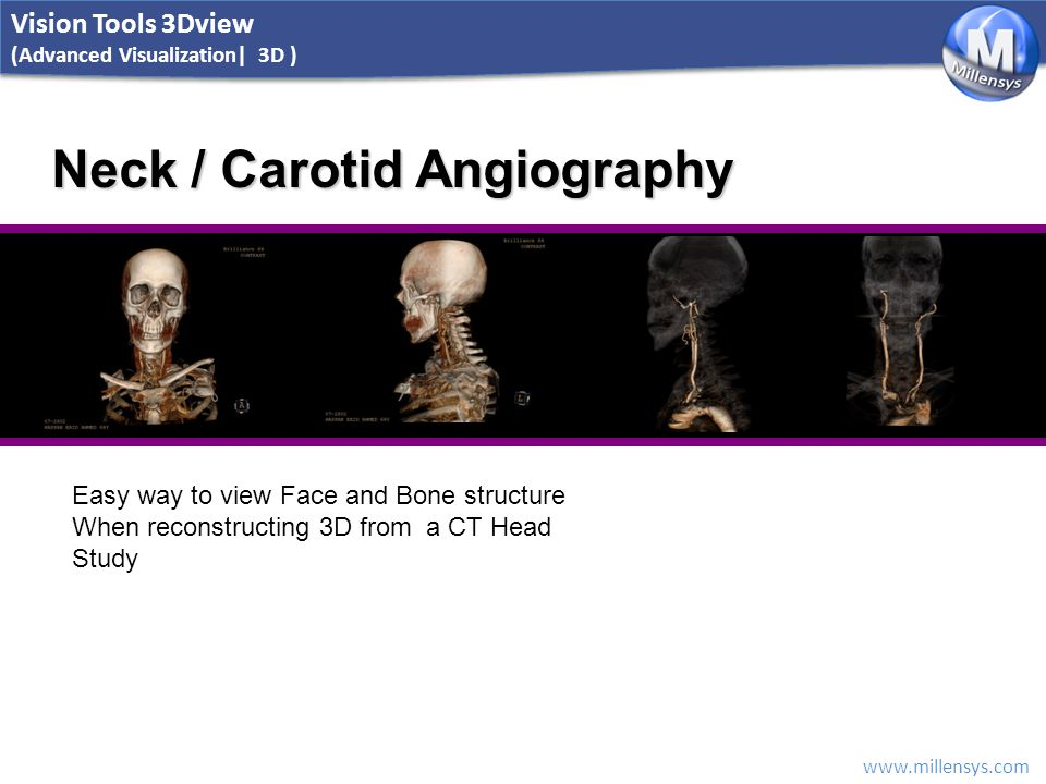 www.millensys.com Neck / Carotid Angiography Easy way to view Face and Bone structure When reconstructing 3D from a CT Head Study Vision Tools 3Dview (Advanced Visualization| 3D )