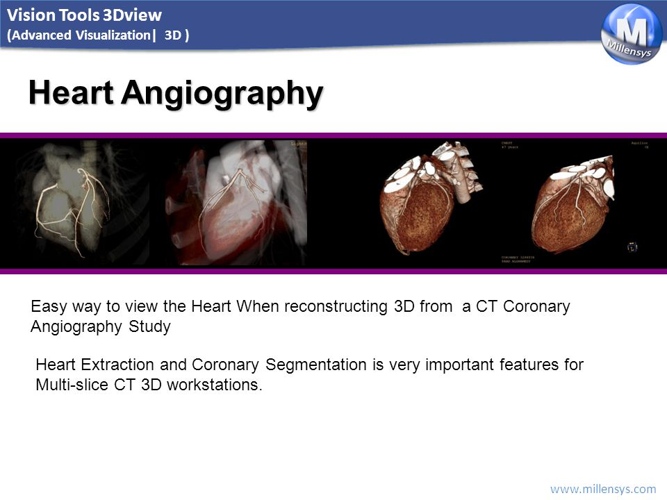 www.millensys.com Heart Angiography Easy way to view the Heart When reconstructing 3D from a CT Coronary Angiography Study Heart Extraction and Corona