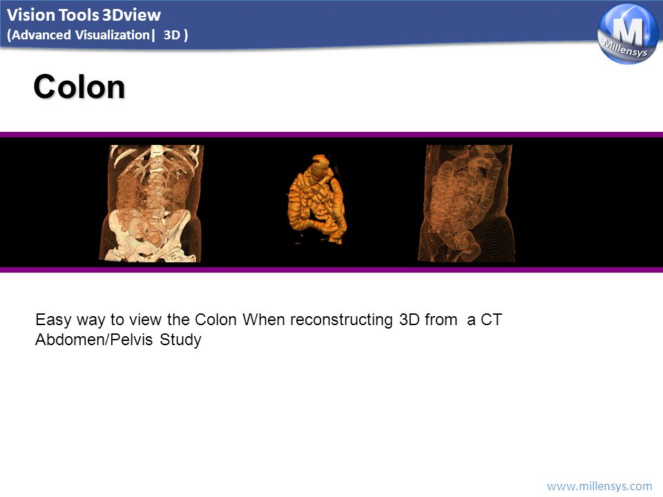 www.millensys.com Colon Easy way to view the Colon When reconstructing 3D from a CT Abdomen/Pelvis Study Vision Tools 3Dview (Advanced Visualization|
