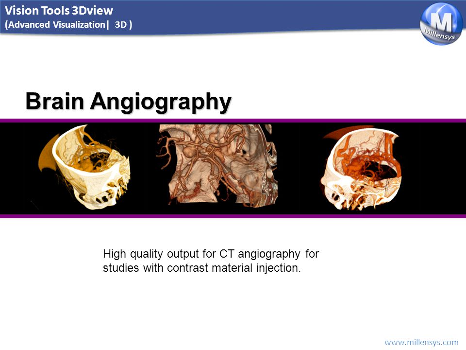 www.millensys.com Brain Angiography High quality output for CT angiography for studies with contrast material injection. Vision Tools 3Dview (Advanced