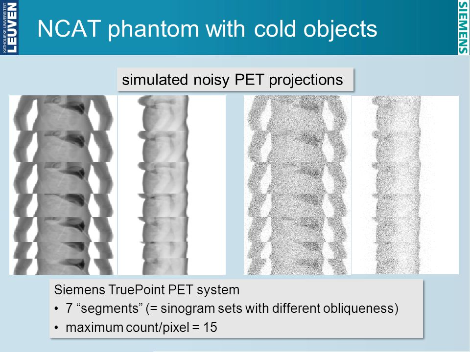 "NCAT phantom with cold objects simulated noisy PET projections Siemens TruePoint PET system 7 ""segments"" (= sinogram sets with different obliqueness)"