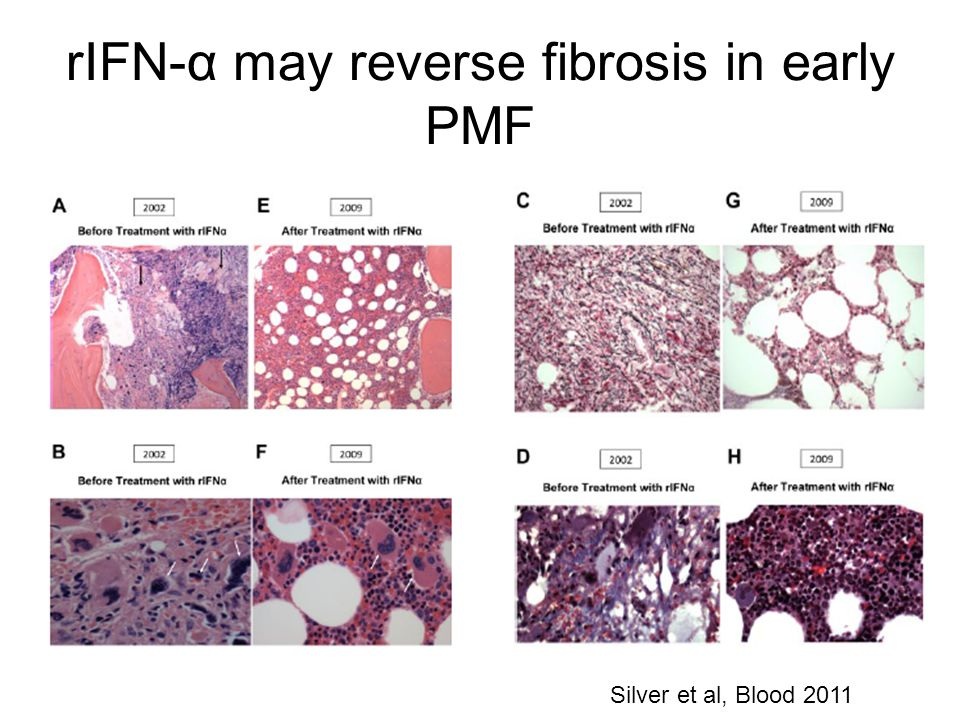 rIFN-α may reverse fibrosis in early PMF Silver et al, Blood 2011