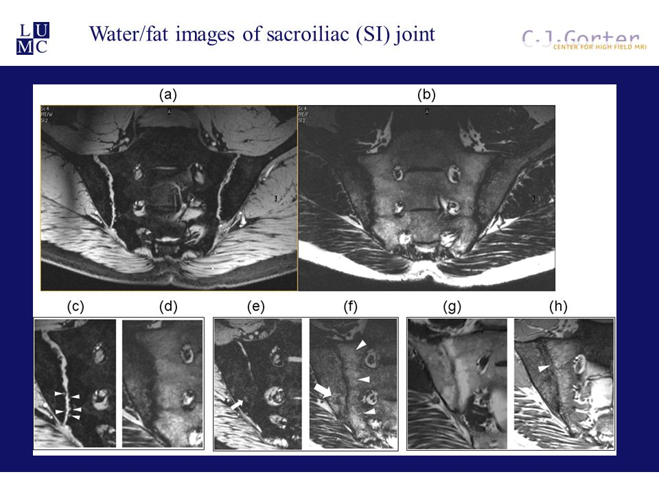 Water/fat images of sacroiliac (SI) joint