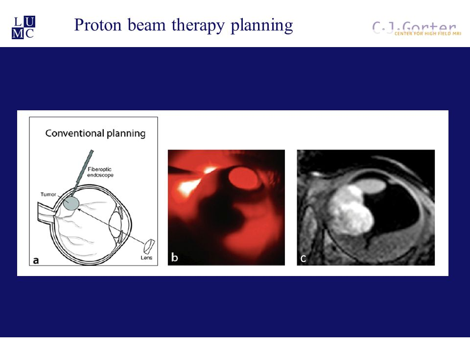 Proton beam therapy planning