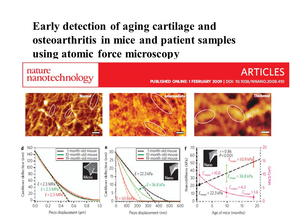 Early detection of aging cartilage and osteoarthritis in mice and patient samples using atomic force microscopy