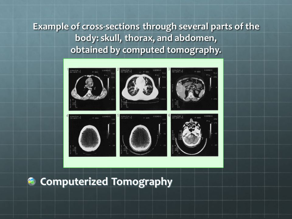 Example of cross-sections through several parts of the body: skull, thorax, and abdomen, obtained by computed tomography.