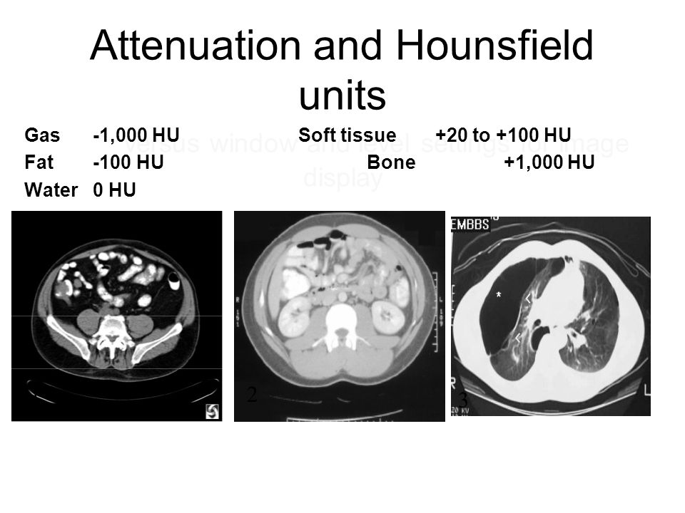Attenuation and Hounsfield units versus window and level settings for image display Gas -1,000 HUSoft tissue+20 to +100 HU Fat-100 HU Bone+1,000 HU Water0 HU 12 3