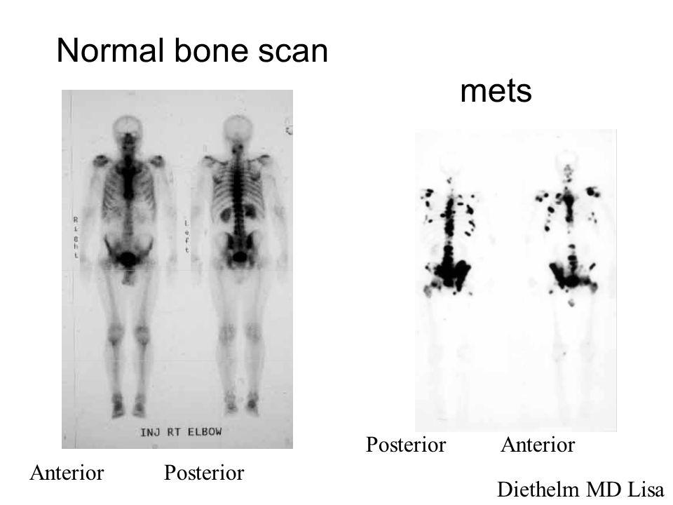 Normal bone scan mets PosteriorAnterior AnteriorPosterior Diethelm MD Lisa