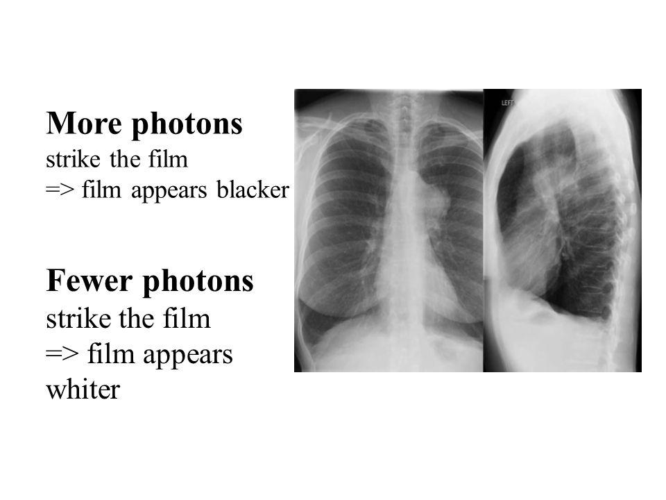 www.med.harvard.edu/JPNM/TF03_04/Sept2/CXR.jpg More photons strike the film => film appears blacker Fewer photons strike the film => film appears whiter