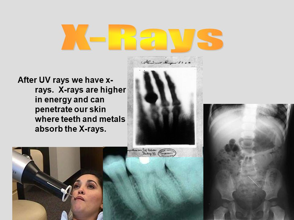 Gamma Rays are products of Nuclear Radiation.
