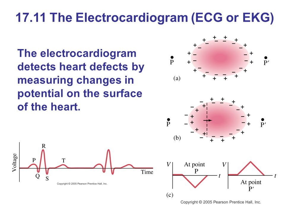 17.11 The Electrocardiogram (ECG or EKG) The electrocardiogram detects heart defects by measuring changes in potential on the surface of the heart.