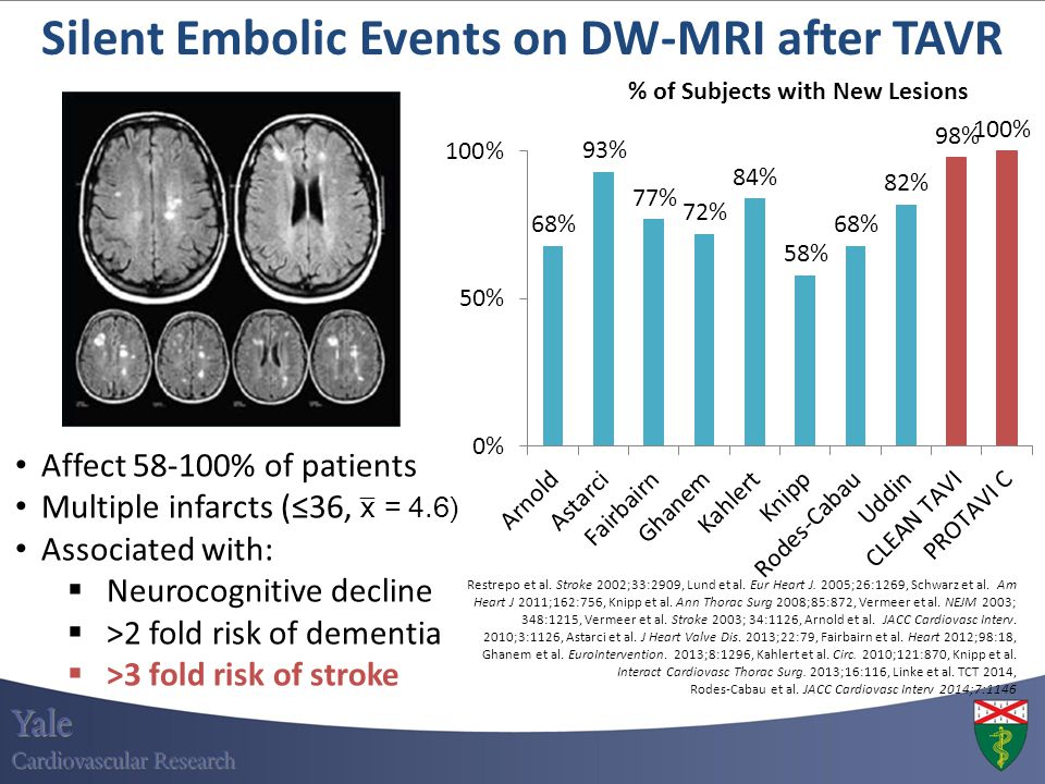 Affect 58-100% of patients Multiple infarcts (≤36, x̅ = 4.6) Associated with:  Neurocognitive decline  >2 fold risk of dementia  >3 fold risk of st