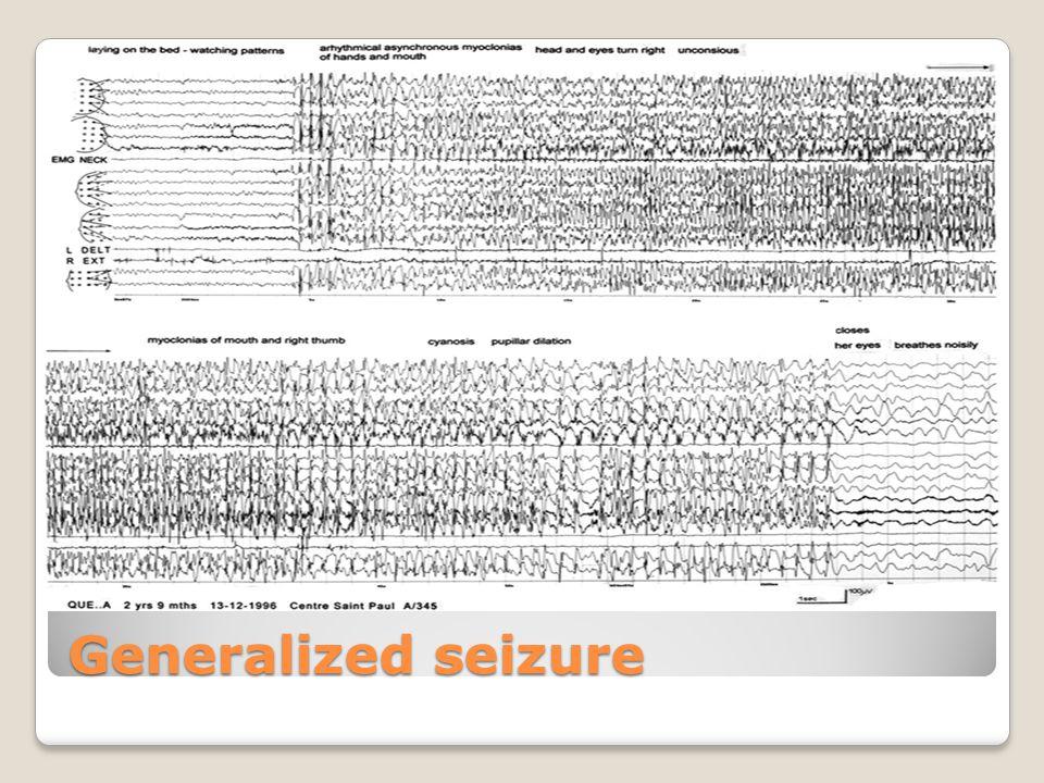 Generalized seizure
