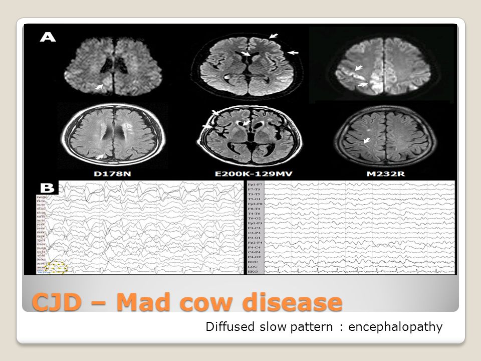 CJD – Mad cow disease Diffused slow pattern : encephalopathy